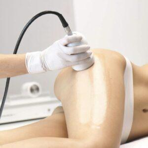 Mesoterapia y Electroporación